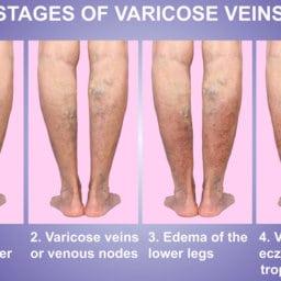 varicose veins surprise mesa AZ