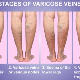 varicose veins surprise mesa AZ