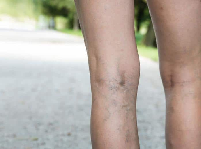 Spider veins surprise scottsdale mesa AZ