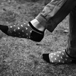 varicose veins in feet ankles pinnacle vein